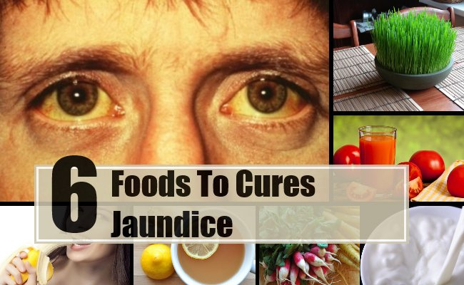 8 Foods That Cure Jaundice