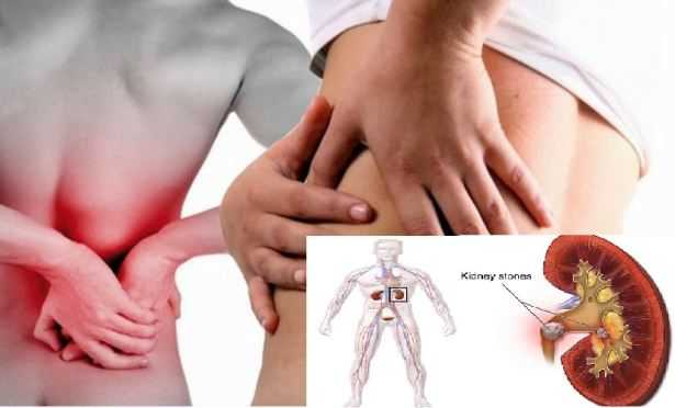 Six Cures To Flush Out Kidney Stones