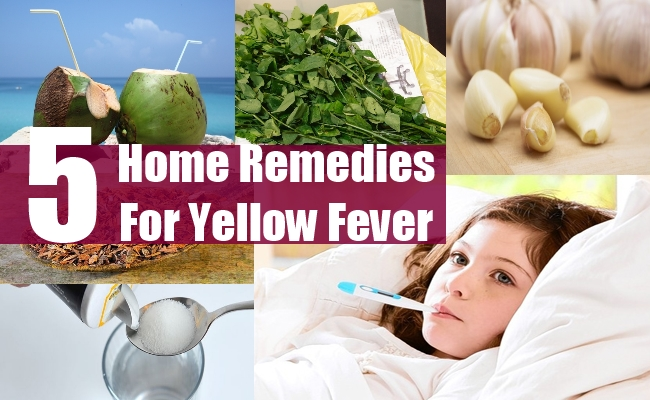 5 Natural Home Remedies For Yellow Fever