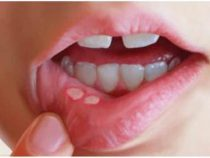 Causes of Fordyce spots on upper lip